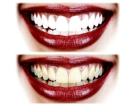 5 Best Natural Teeth Whitener You Should Use